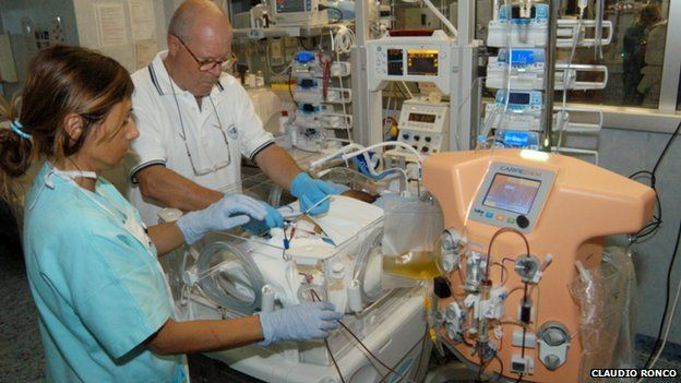 Doctors using the dialysis machine for babies, called CARPEDIEM (15h May 2014)