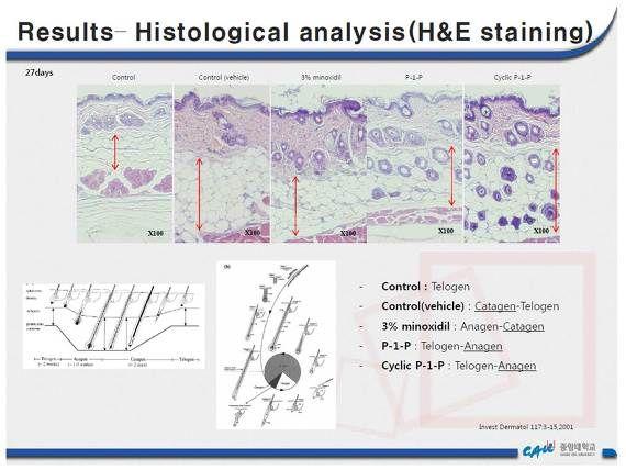 P1P는 B-Catenin 과 Wnt 단백질의 발현을 증가시켜 탈모치료에 기여하는 물질이다.  Induction of hair growth by phytosphingosine-1-phosphate (P1P) in C3H/HeJ mice model