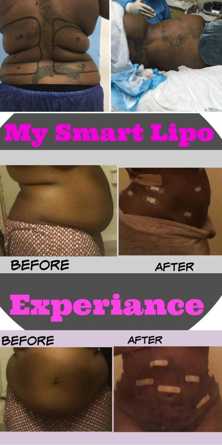 I Got Plastic Surgery. My SmartLipo Experience. Before and After Results 1 Week …