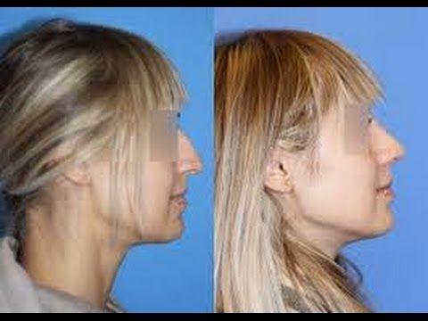 Cirugía de nariz al mejor precio Clínica rinoplastia barata económica Descuento Valencia Alicante - http://www.nopasc.org/cirugia-de-nariz-al-mejor-precio-clinica-rinoplastia-barata-economica-descuento-valencia-alicante/