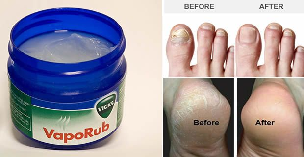 8 Surprising Ways To Use Vicks VapoRub | IFAI
