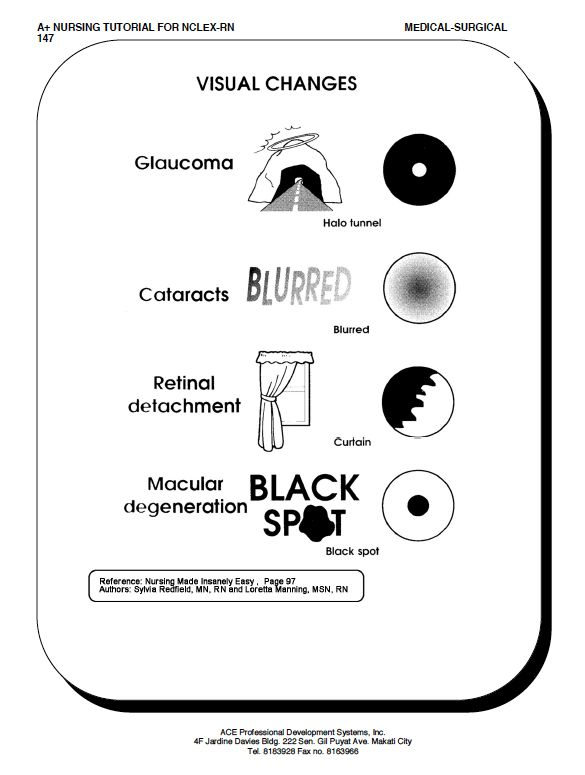 Visual changes | glaucoma angel, cataract blizzard, retina curtains, macular spotty