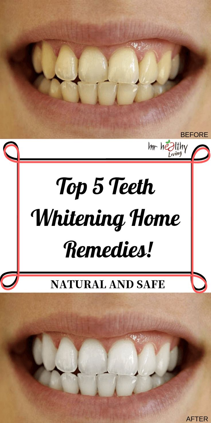 Top 5 Teeth Whitening Home Remedies!