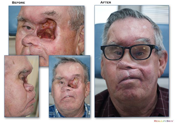 Often cancer requires aggressive ablative surgery resulting in the removal of extensive facial anatomy. Facial prosthetics technologies designed at the Center often provide sub-dermal anatomy such as the sinus and maxillary sinuses with superior palette and dentures. Designing facial prosthetics with prosthetic sinus airways often enables two-fold functionality – improved breathing and speech with supportive prosthetic retention.