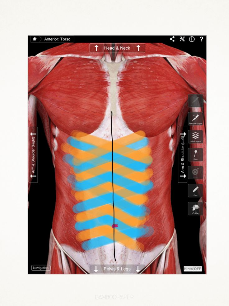 Kinesio taping to improve diastasis recti ( the mommy pooch) post delivery! Helps to support the core until muscles repair themselves.