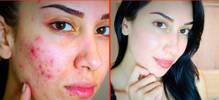 Ecco rimedio casalingo estremamente economico e semplice da seguire per sbarazzarsi di acne e brufoli utilizzando il bicarbonato di sodio.I dettagli