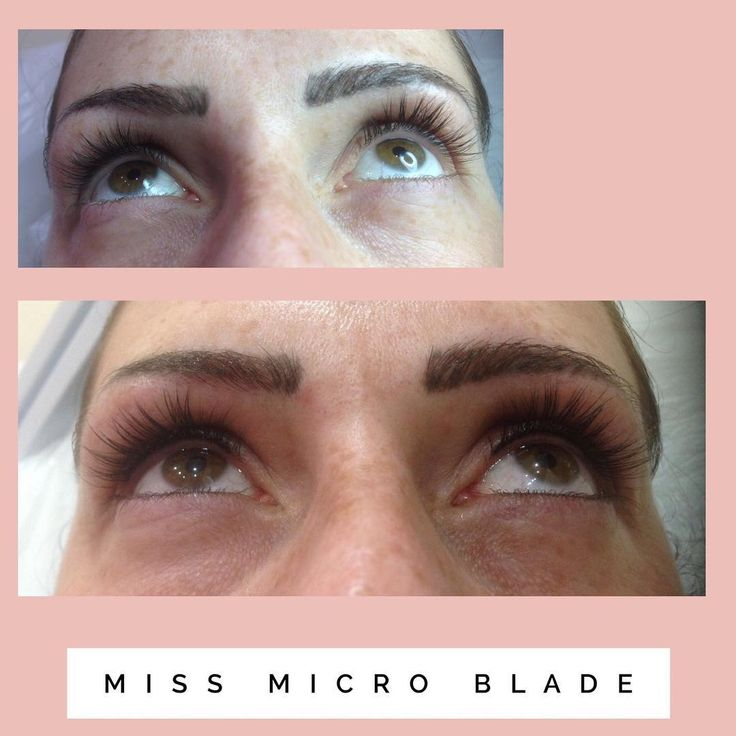 Suzanne wanted her eyes to look more Defined but still natural, so we did a medium black Lash line tattoo that runs through her upper lashes making her lashes look darker and thicker and her eyes FOXY��⠀⠀ Bye bye smudged eyeliner����⠀⠀ @frankiegalea_missmicroblade ⠀⠀ #missmicroblade ⠀⠀ #smpua #smpu #tattooedeyeliner #smudgeproofmakeup #smudgeproofeyeliner #semipermanentmakeup #semipermanenteyeliner #tattooartist #eyelineronpoint #eyeliner #eyelinergoals #eyelineronpoint #eyelinerfordays…