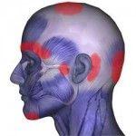 Sternocleidomastoid Muscles: Affects Head, Eyes, Sinus, Ears, Throat, Pain, Dizziness, Whiplash