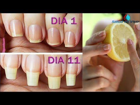 Pon tus uñas en este remedio y en 10 días te asustarás de lo tanto que crecerán sin parar - YouTube