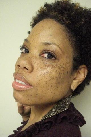 La pigmentation sur la personne et comme deux se délivrer