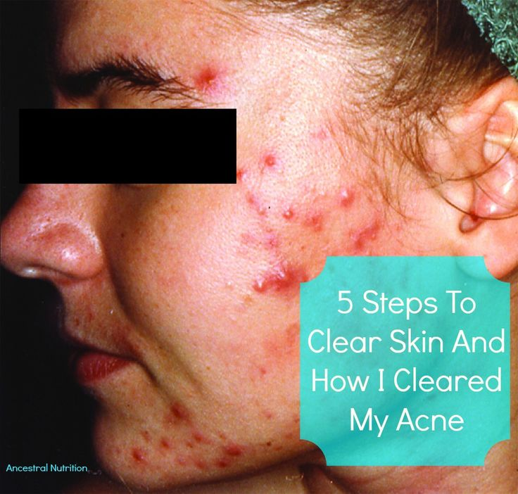 How to Clean the Skin with ACNE
