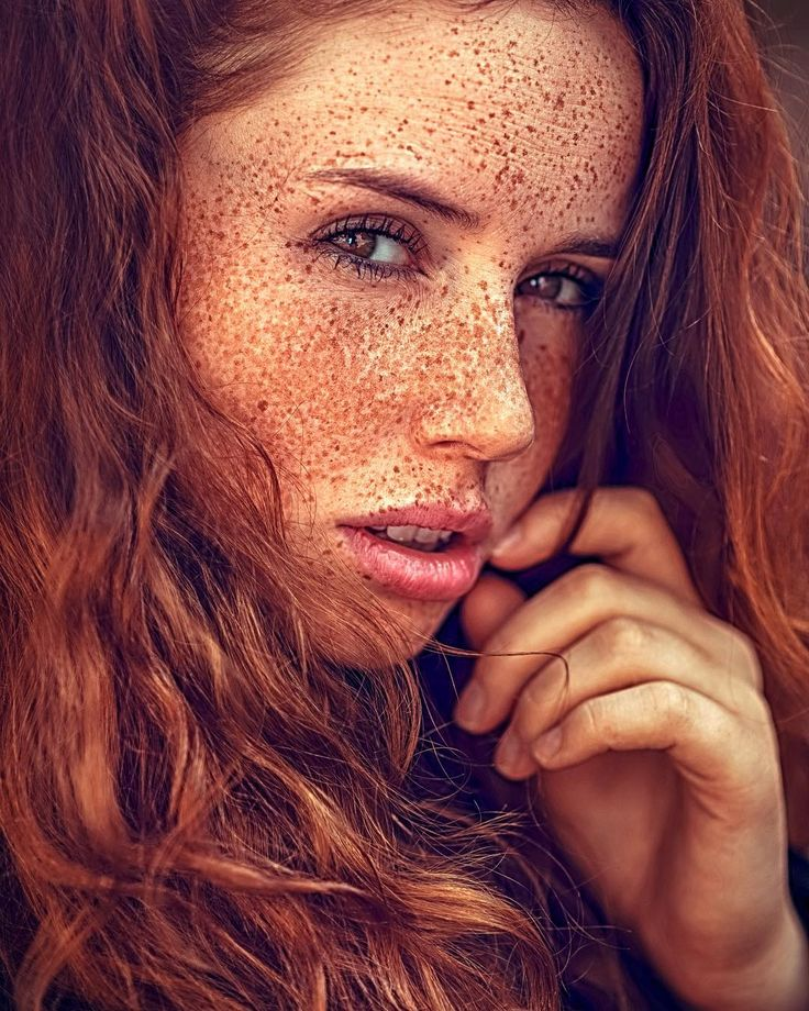 Pretty Girls With Freckles