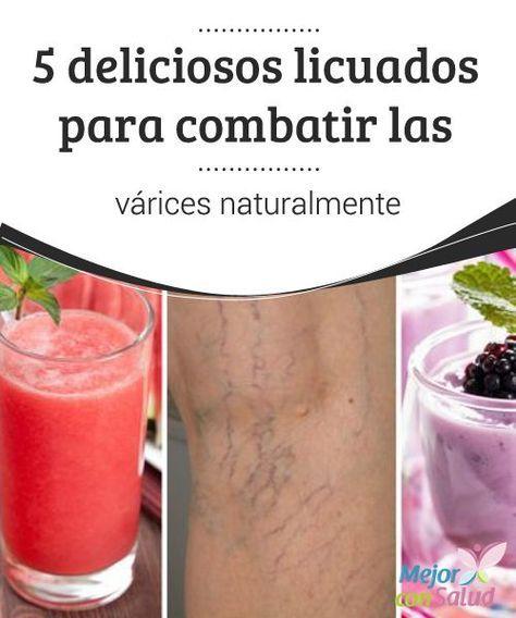5 deliciosos licuados para combatir las várices naturalmente El consumo de algunos licuados puede facilitar y mejorar el tratamiento de las venas várices. Te compartimos 5 deliciosas recetas.