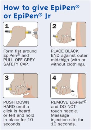 How to give EpiPen/ Most popular adrenalin shot for severe bee/food allergies