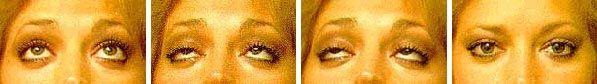 Myasthenia Gravis - Symptoms affecting the mysthenic patient  Drooping eyelids   I have fibromyalgia.   Is it linked to fm?