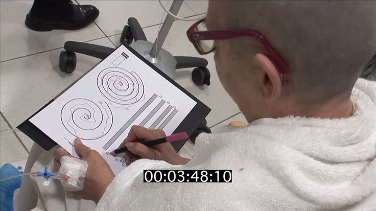 El temblor esencial (ET) es un síndrome caracterizado por una lenta progresión del temblor postural y/o cinético (del movimiento), que suele afectar a ambas extremidades superiores. Resofus combina las imágenes resonancia magnética y los ultrasonidos en la tecnología de Ultrasonidos Focalizados, proporcionando un tratamiento transcraneal no invasivo guiado por imágenes de RM sin radiación ionizante.