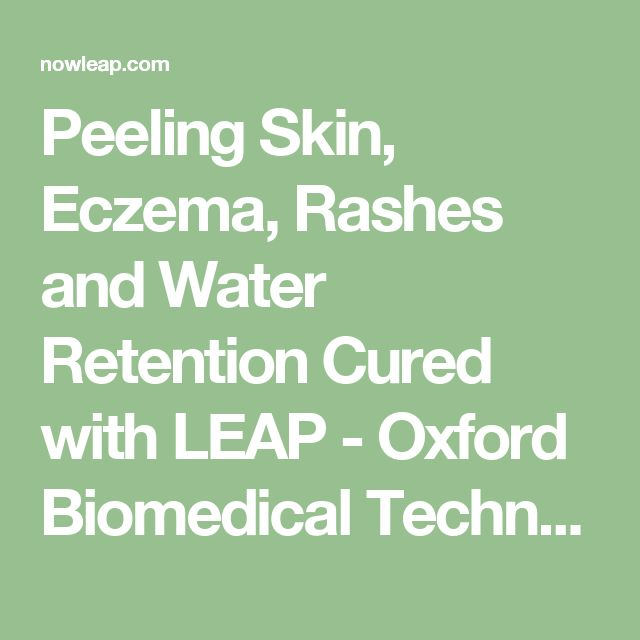 Peeling Skin, Eczema, Rashes and Water Retention Cured with LEAP - Oxford Biomedical Technologies, Inc.