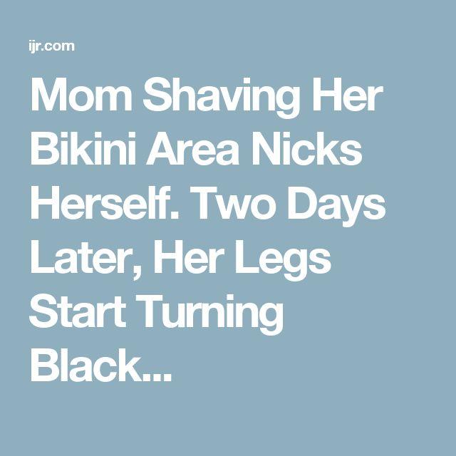 how to get rid of shaving bumps on bikini area