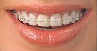 Clear/Ceramic tooth colored braces.