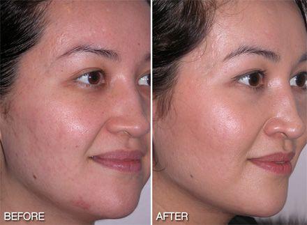 reviews of dermalogica skin care