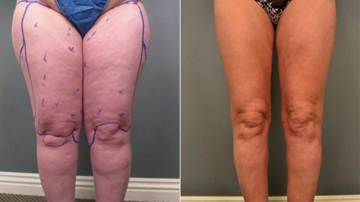 #Jasna #left #Legs #Liposuction #tre #Turnics Jasna Turnic's legs before (
