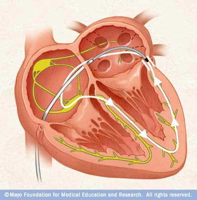 In #catheter #ablation, catheters are threaded through the blood vessels to the inner heart, and electrodes at the catheter tips transmit energy to destroy a small spot of heart tissue.
