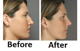 Dr. Christine Petti has become world renowned for creating noses that fit perfectly with an individual's face. #rhinoplasty