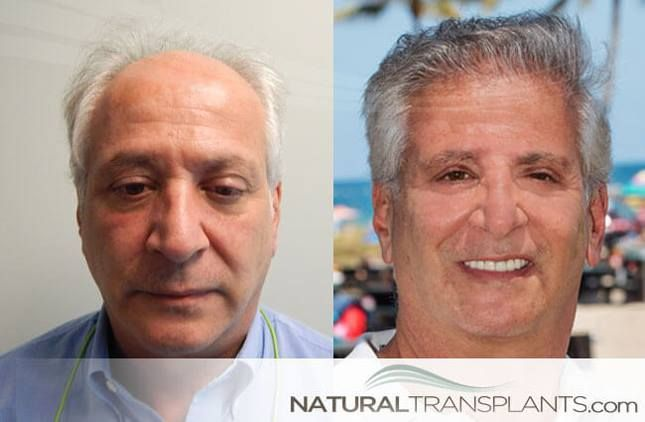 How Much Does Hair Restoration Cost   Hair Transplant Before and After