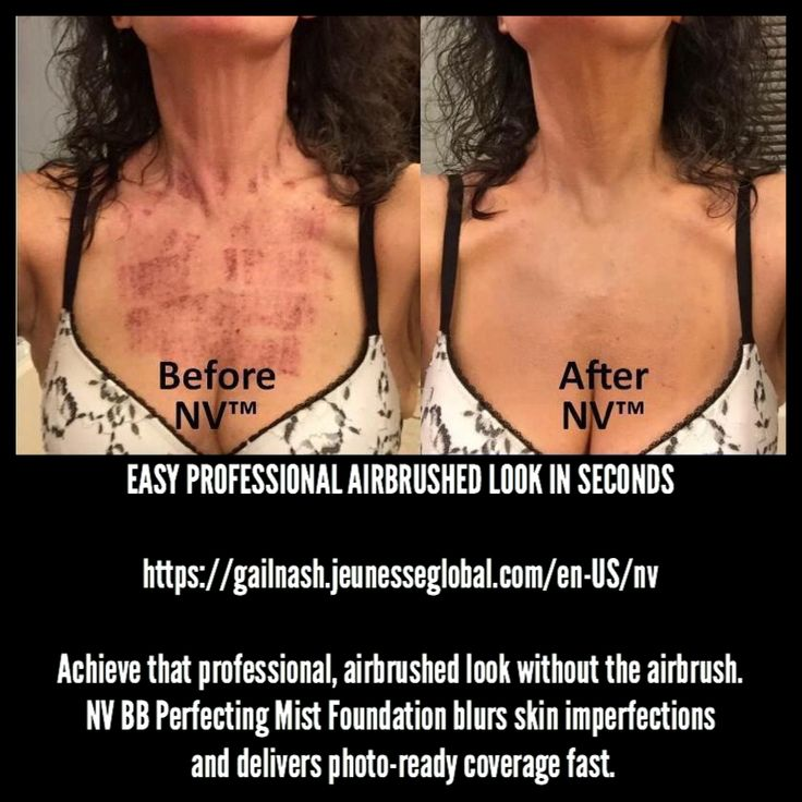 NV is an incredible product....it's not just for the face.   Since it is water and wear resistant it is the perfect product to use on all areas of the body. It covers rosacea, scars, birth defects, tattoos and etc.    https://gailnash.jeunesseglobal.com/en-US/nv