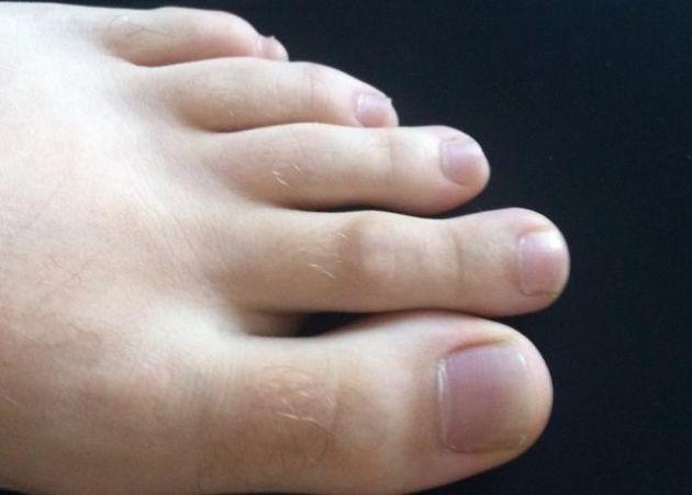 Ddo de Morton.-Es la condición médica que provoca una desproporción física en los pies. Más concretamente, hace que el segundo dedo sea más largo que el dedo gordo.