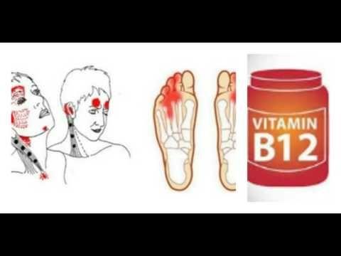 (2) Nunca ignores estas señales de advertencia de deficiencia de vitamina B12, esto es serio - YouTube