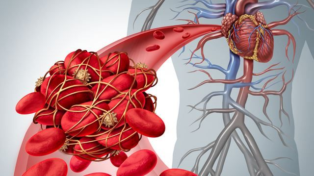 HEART HEALTH: Blood clots are more serious than you think