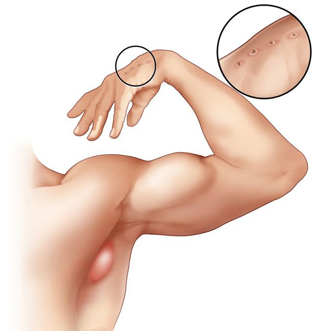 An enlarged lymph node in the armpit region of a person with cat-scratch disease, and wounds from a cat scratch on the hand
