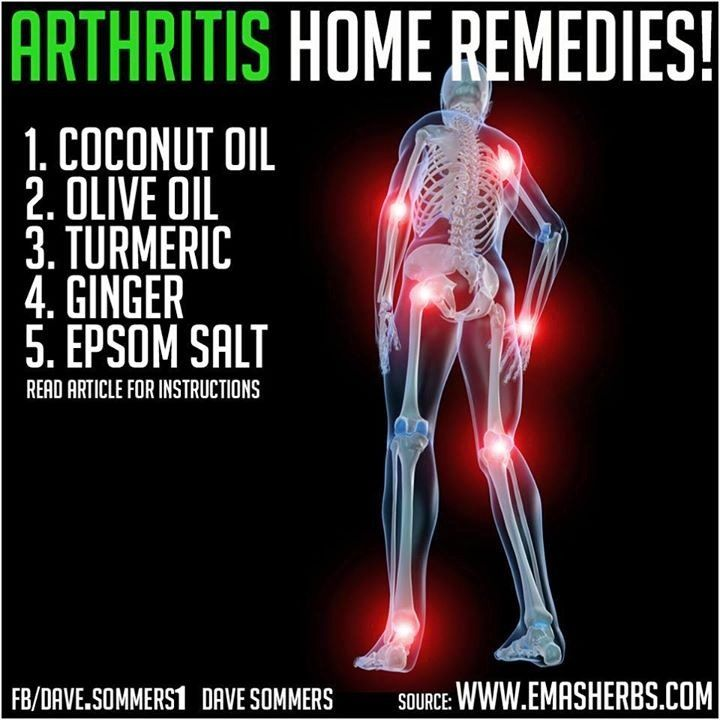 Arthritis Natural Remedies