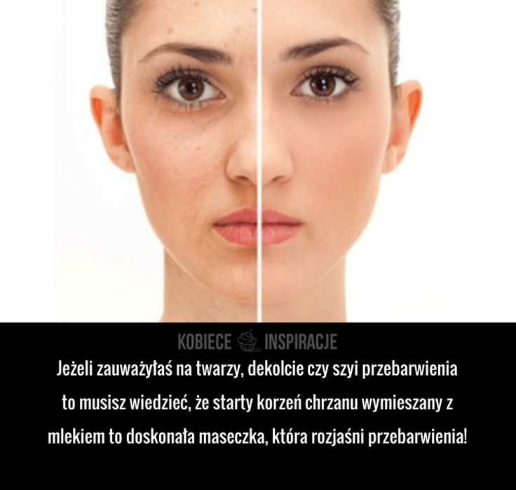 Jeżeli zauważyłaś na twarzy, dekolcie czy szyi przebarwienia to musisz wiedzieć, że starty korzeń chrzanu wymieszany z mlekiem to doskonała ...