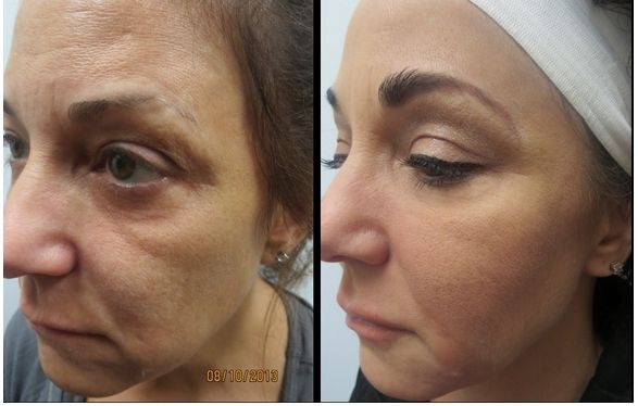 View these Juvederm Voluma XC before and after pictures at ...