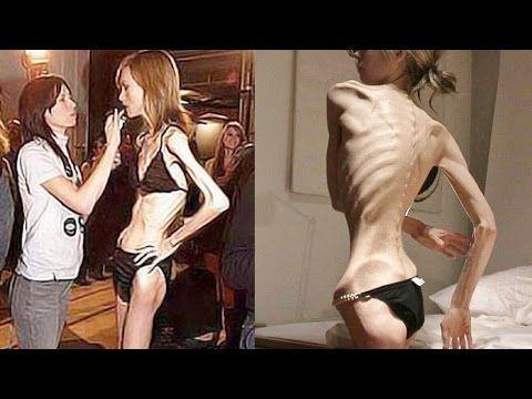 10 Impactantes y Reales Casos De Anorexia y Bulimia (Imágenes Impactantes) - YouTube