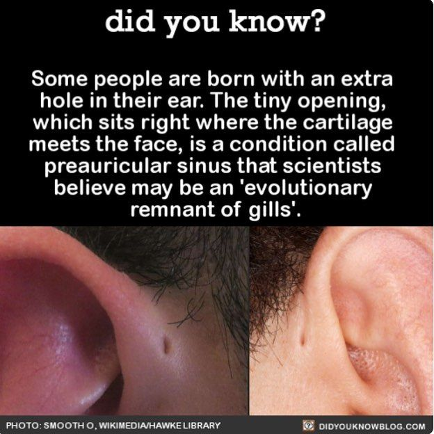 omg I have this and didn't know it was a thing!