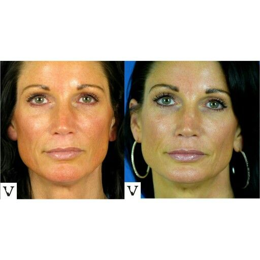 This is how a vial of Sculptra looks: subtle demure softness &  freshness of a chiseled beautiful to begin with face, non-surgical facelift is our specialty www.visagesculpture.com #boston #facelift #face #sculptra #rhinoplasty #nosejob #alternative #injection #expert #newton #asymmetry #correction #reconstruction #hiv #lips #eyes #beauty #taste #youth #young #proportion #selfesteem #juvederm #belotero #merz #galderma #allergan #botox #sculptra #chin #augmentation #jaw #reduction #face…