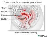Endometriosis After Hysterectomy options to deal with endometriosis after such BS!!!!!