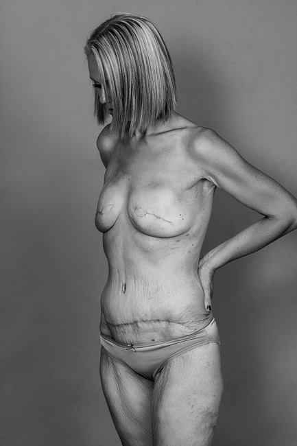 "Regarding the photo shoot, she said, ""At first it was confronting but after a little while rather empowering. A good experience, my scars are not ugly they mean I'm alive."" 