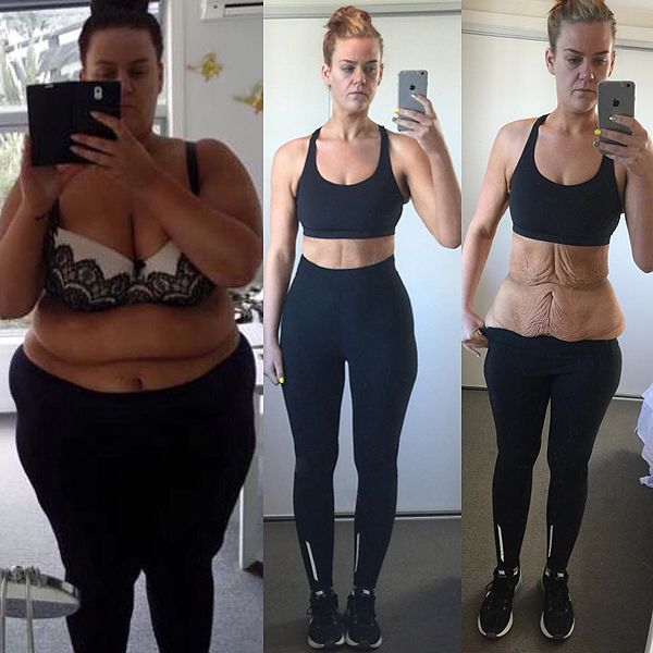 Makeup artist who shared 194lb weight loss on social media gets body contouring help from #ASPS‬ member Dr. Remus Repta. #PlasticSurgery
