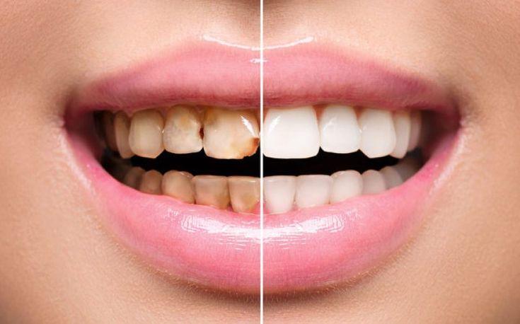 Dlho ma trápili škaredé zažltnuté zuby, začala som poúživať tieto triky a moje zuby sú teraz žiarivo biele | Báječné Ženy