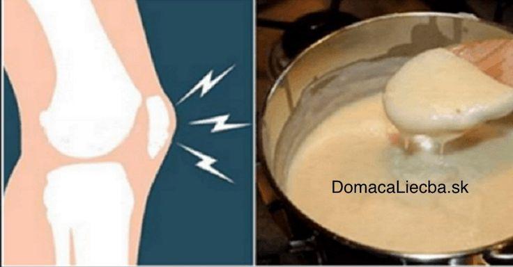 Tento recept na bolesti kĺbov sa šíri svetom ako požiar