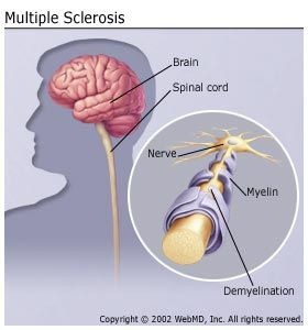 Multiple Sclerosis: an autoimmune disease where the myelin sheath (protective covering that surrounds nerve cells) is damaged due to inflammation.  This causes nerve signals to slow down or stop.  Causes are unknown though a virus or gene defect are commonly thought to be the causes.  Symptoms include loss of balance, muscle spasms, numbness, problems with movement and coordination.  There is no cure though therapies may slow the disease by controlling symptoms.