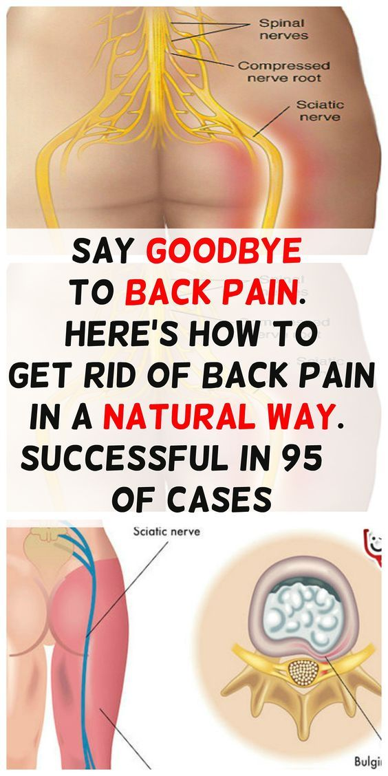 2455 Best Images About Sciatica Pain Relief And Treatment