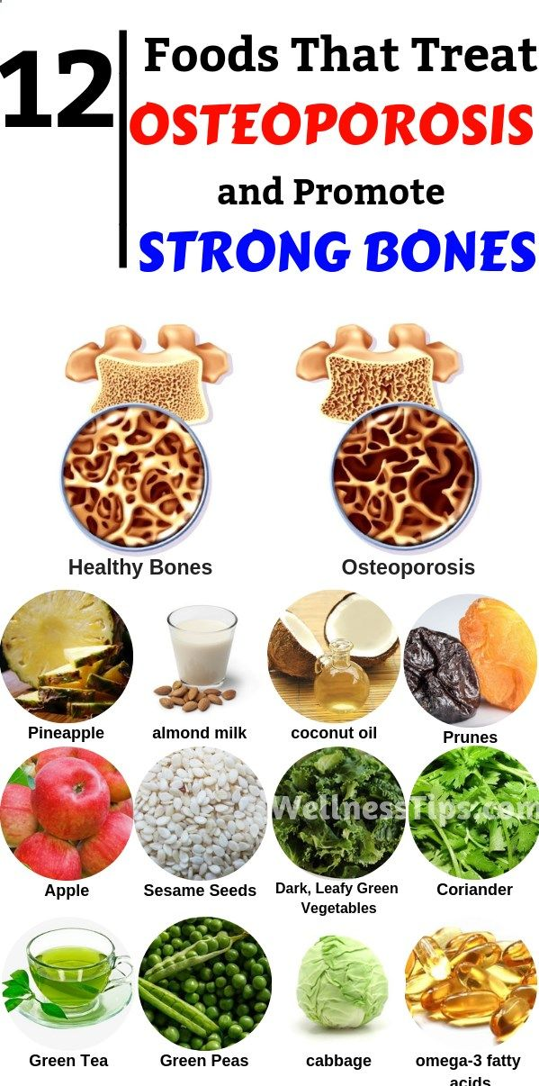 34++ What medical specialist treats osteoporosis ideas in 2021