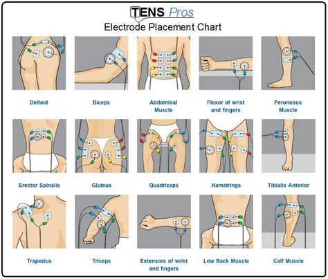 TENS unit electrode placement chart for different sports/life injuries ...