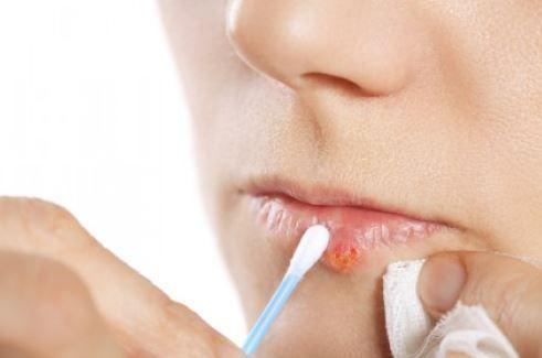 Come curare l'herpes labiale in modo naturale e veloce
