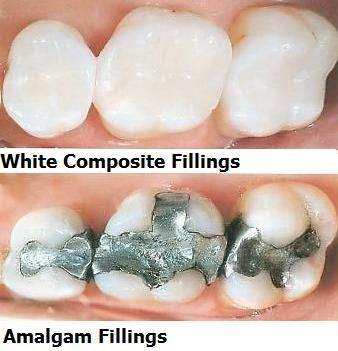 We can remove your silver (amalgam) fillings and replace them with tooth-colored composites.  Make way for a beautiful smile!  #ruoppdds